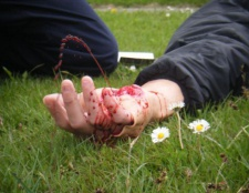 Артеріальна кровотеча. Ознаки артеріальної кровотечі. Правила зупинки артеріальної кровотечі