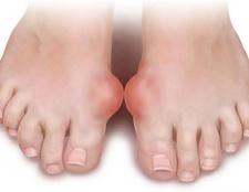 Артрит пальця ноги: причини, симптоми і методи лікування