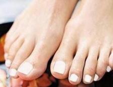 Хвороби ніг. Симптоми, лікування і профілактика
