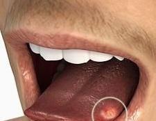 Болячки на мові: ймовірні причини і способи лікування