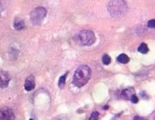 Цитомегаловірус: лікування, симптоми, профілактика