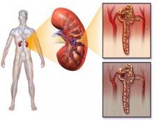 Діабетична нефропатія: стадії, симптоми і лікування
