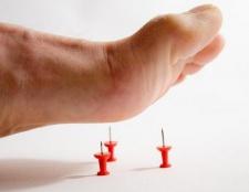 Діабетична полінейропатія - ускладнення цукрового діабету