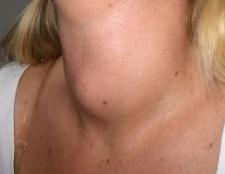 Гіперплазія щитовидної залози: симптоми, діагностика, причини захворювання
