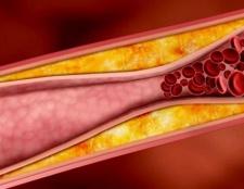 Холестерин: норма в крові у чоловіків і жінок