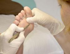 Позбавляємося від такої проблеми, як натоптиші на ногах. Лікування і профілактика