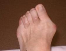 Як і чому виникають шишки на пальцях ніг