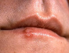 Як позбутися від застуди на губах? Застуда на губах: фото, лікування, препарати
