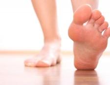Як лікувати мозолі на ногах за допомогою традиційної медицини і народними засобами?