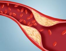 Як знизити холестерин народними засобами. Швидке зниження холестерину без статинів