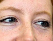 Як прибрати набряки під очима? Кошти від набряків під очима