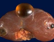 Кіста нирки: лікування, діагностика і причини
