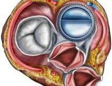 Клапан серця - значення в організмі, види, протезування