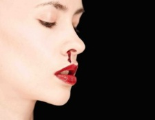 Кров з носа - ознака хвороби?