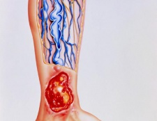 Лікування трофічної виразки на нозі. Трофічні виразки при діабеті