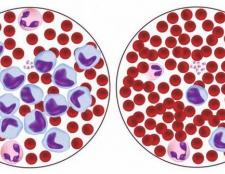 Лімфоцити в крові підвищені. Підвищені лімфоцити в крові - причини, лікування