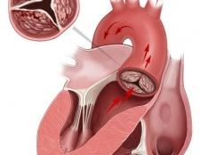 Мітральний стеноз: причини, симптоми, лікування