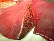 Основні симптоми захворювання печінки