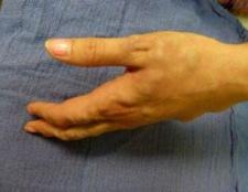 Чому здуваються вени на руках?