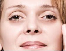 Набряки під очима: причини виникнення та способи лікування