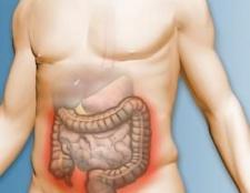 Причини і симптоми раку прямої кишки