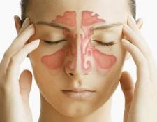 Ознаки гаймориту у дорослих. Симптоми і методи лікування гаймориту у дорослих