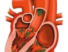 Пролапс мітрального клапана: симптоми і лікування