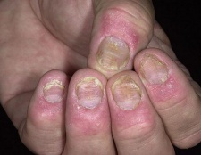 Псоріаз нігтів - лікування. Псоріаз на нігтях - фото