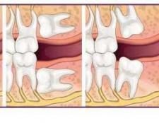 Ретінірованний зуб: що це? Симптоматика, ризики та способи лікування