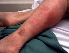 Рожа на ногах: причини і симптоми. Лікування бешихового запалення ноги