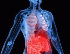 Симптоми коліту: форми, причини