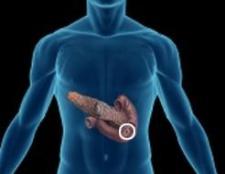 Синдром-еллісона (гастринома)