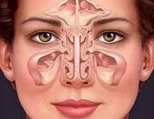 Синусит: симптоми, лікування і профілактика