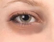 Темні кола під очима: причина їх появи і ефективне лікування