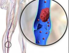 Тромбофлебіт глибоких вен нижніх кінцівок: причини, симптоми і методи лікування