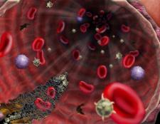 Вовчаковий антикоагулянт. Причини підвищення його рівня в крові, аналіз і його результати