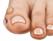 Пухирі на ногах. Пухирі на ногах у дитини. Як лікувати пухирі на пальцях ніг