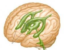 Шлуночки головного мозку. Розширення шлуночків головного мозку
